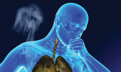 Cough Associated with COPD