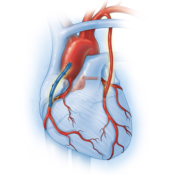 After how much time can a non-cardiac surgery be done after bypass surgery?