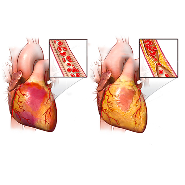 Angina - causes, symptoms and treatment?