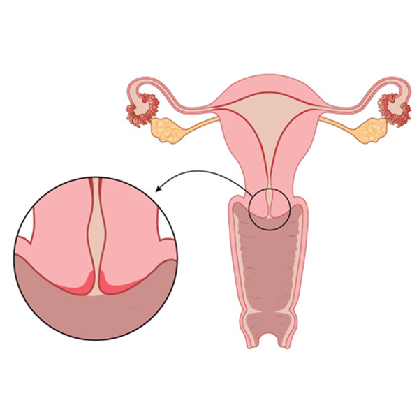 Apart from cancer of cervix, which are the gynecological cancer in women?