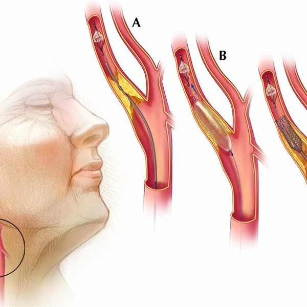 Can bypass be done along with carotid artery intervention?