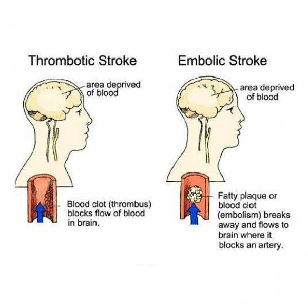 Difference between an embolic stroke and a thrombotic stroke?