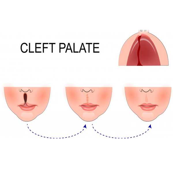 How do you treat a Cleft lip and a Cleft Palate?
