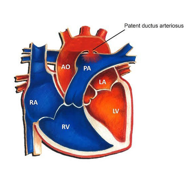 Intervention in a case with PDA (Patent Ductus Arteriosus)?