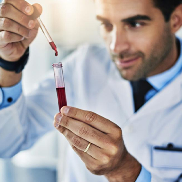 Is a cholesterol value reliable, does it vary from lab to lab?