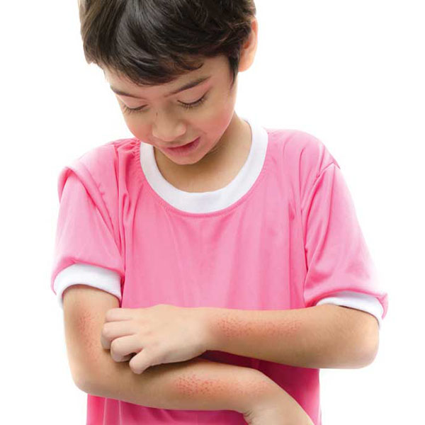 It seems that more and more kids have allergies these days. Why is that?