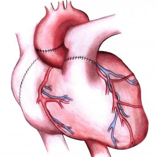 What are the considerations for heart transplant?