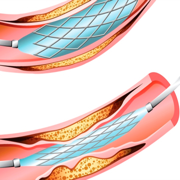 What are the first generation stents?