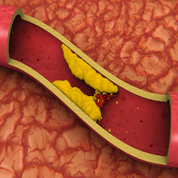 What happens when an artery gets blocked?