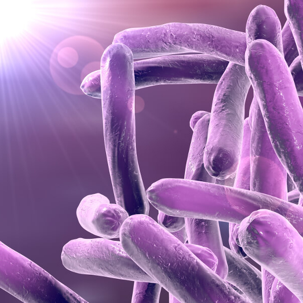 What is the diagnosis of Mycobacterium tuberculosis?