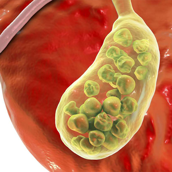 What can happen if gallstones are left untreated?