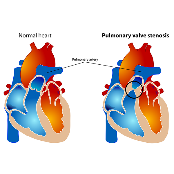 What is pulmonary stenosis?