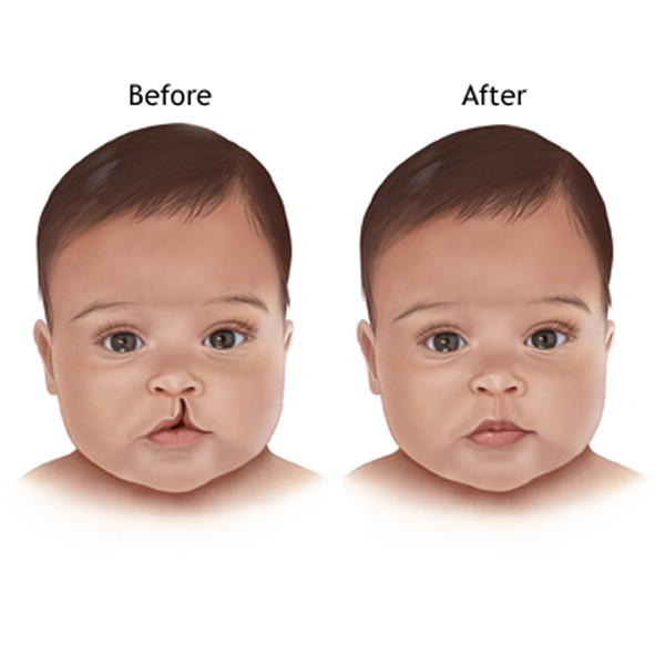 When should a child be operated upon for a cleft lip or a cleft palate?