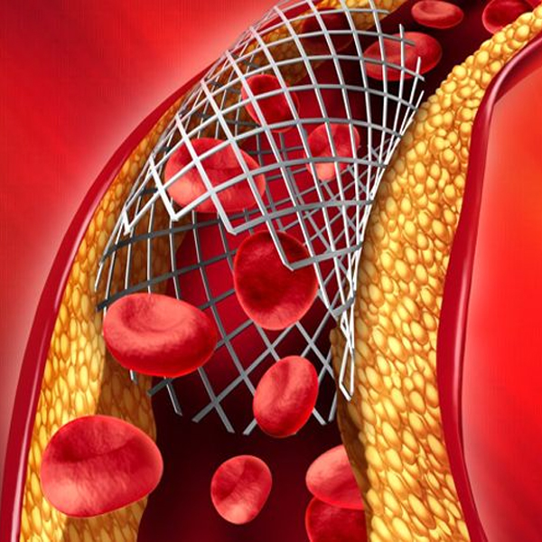 When should we use bare metal stents in acute MI?