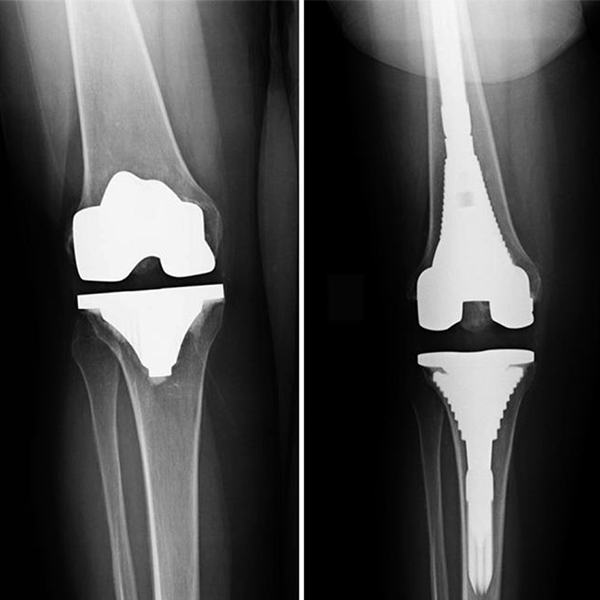Why do knee replacements fail?