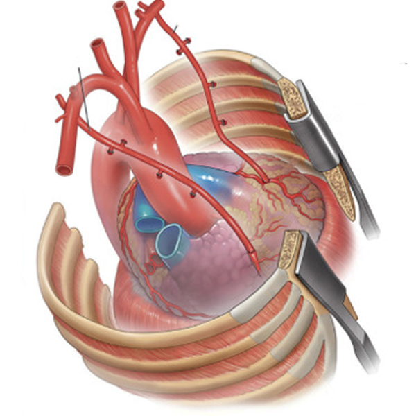 When should we go in for a total arterial bypass surgery?