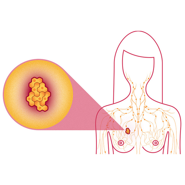 What is the survival rate for breast cancer in different  stage?