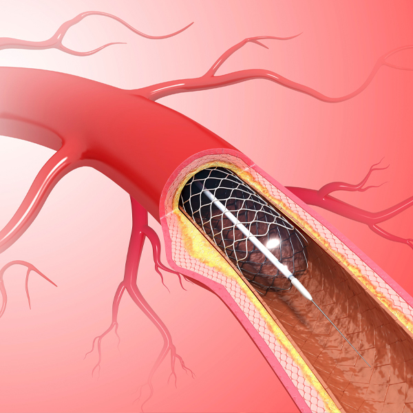 What are the second generation stents?
