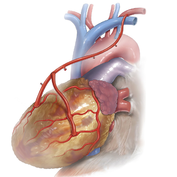 What is total arterial bypass surgery?
