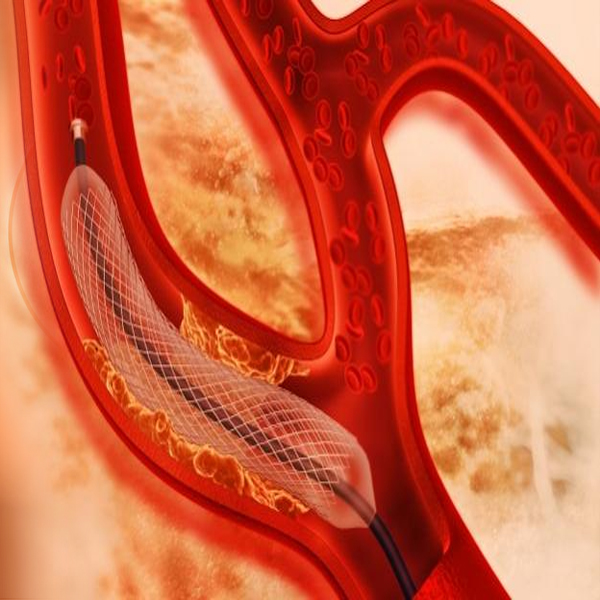 What are the third generation stents?
