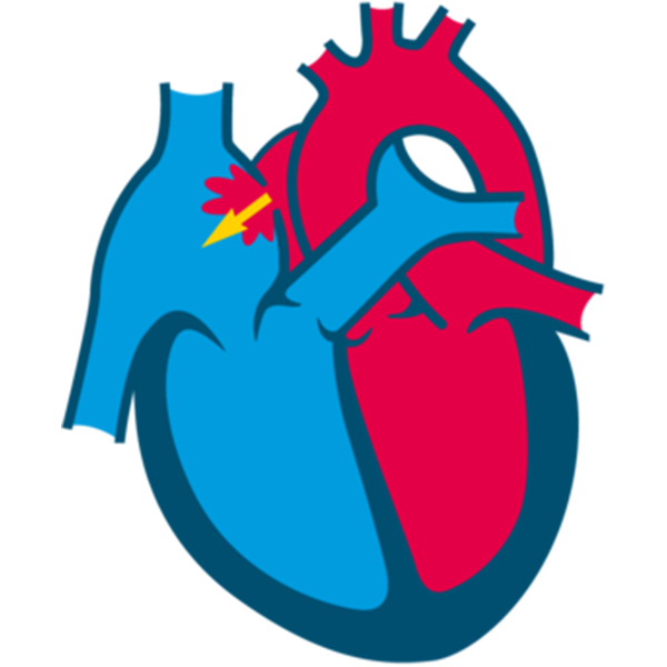 What is atrial septal defect (ASD)?