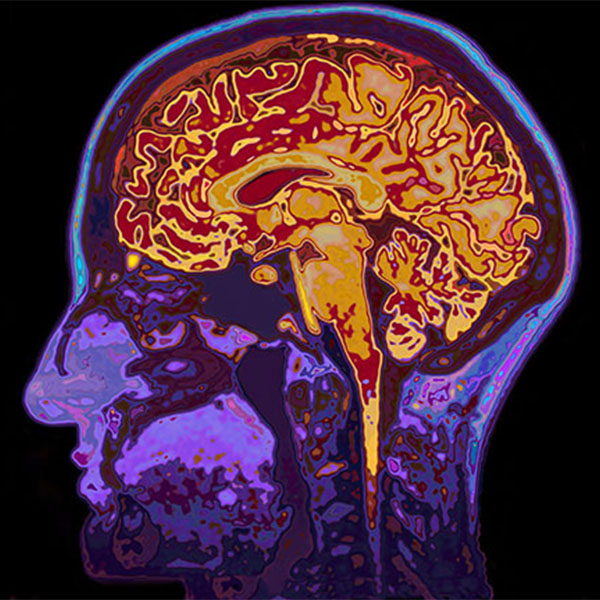 What are the new treatment modalities in dementia?