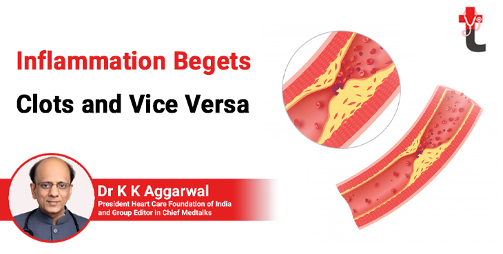 Inflammation begets clots and vice versa
