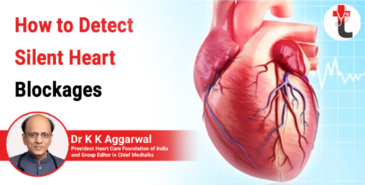 How to detect silent heart blockages